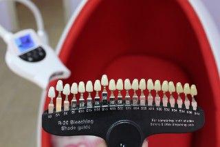 купить кресло для отбеливания зубов